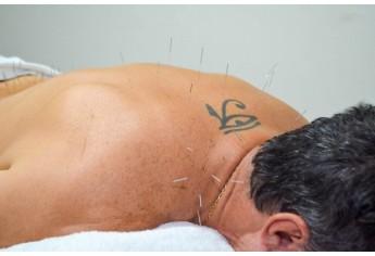 As agulhas da Acupuntura, quando aplicadas sobre algumas regiões específicas são capazes de tratar diversas doenças físicas ou emocionais como sinusite, asma, enxaqueca ou artrite por exemplo (Foto: Maikon Moraes).