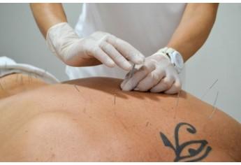 Acupuntura é uma terapia milenar que consiste na aplicação de agulhas em pontos específicos do corpo para tratar doenças e para promover saúde (Foto: Maikon Moraes).