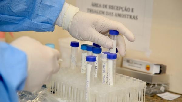 Número total de casos positivos de Covid-19 na cidade, desde o início da pandemia, é de 383 registros, com 11 óbitos (Foto: GovSP).