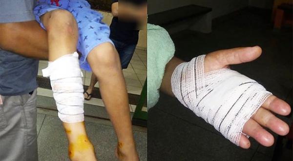Criança teve ferimentos na perna e idosa foi atacada a mão (Foto: Valdecir Luís/Bastos Já).
