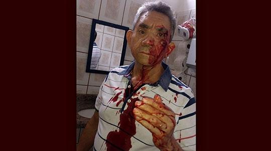 O professor Paulo Rafael Procópio, de 62 anos, ensanguentado, após a agressão (Foto: Acervo Pessoal).